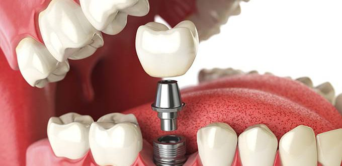Dental Implant Restoration